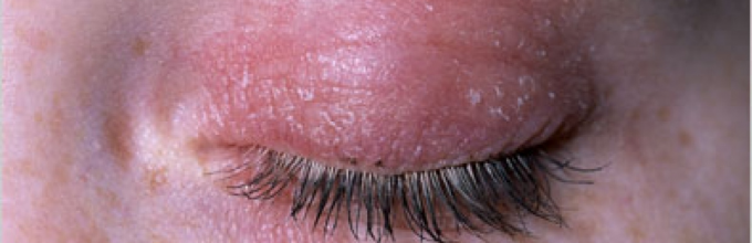 причины покраснений вокруг глаз