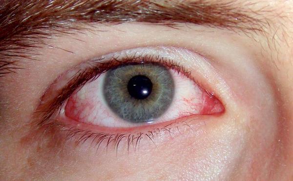отслоенный глаз
