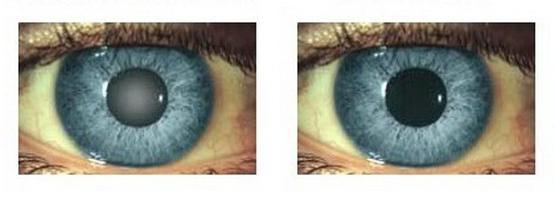 глаза астигматизм