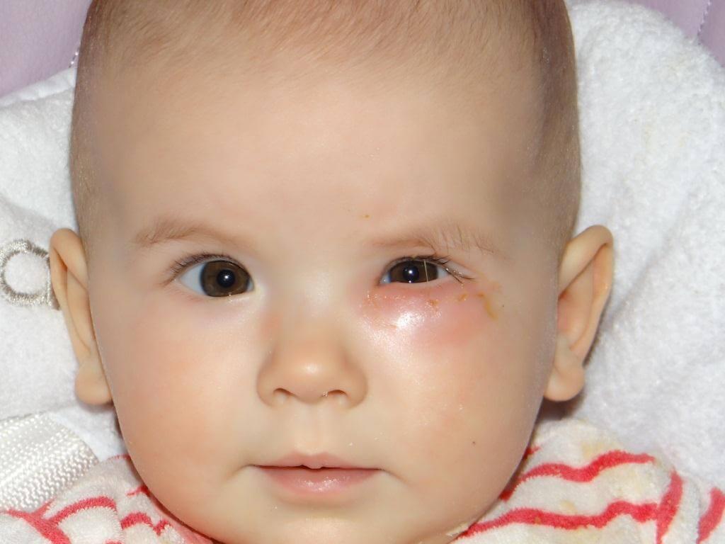 болезнь глаз у детей