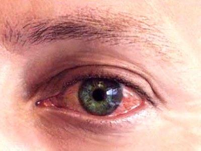 диагностика покраснения глаза