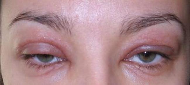 Лечение аллергии на веках: причины формы и диагнистика