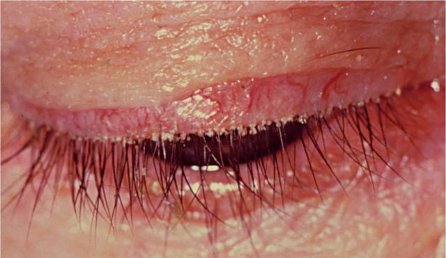 блефариты лечение