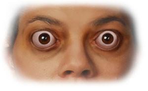 причины эндокринной офтальмопатии