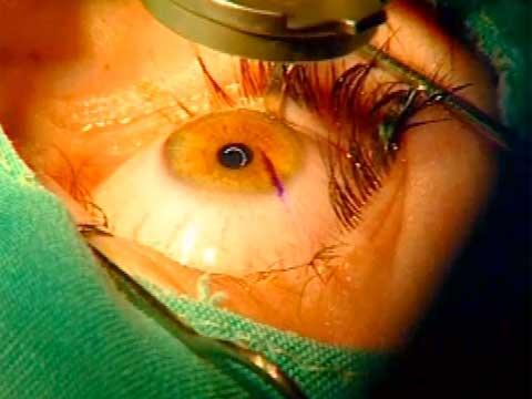 хирургическое лечение близорукости