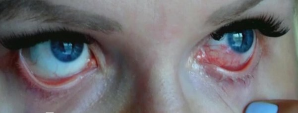 ожог глаз от солнца