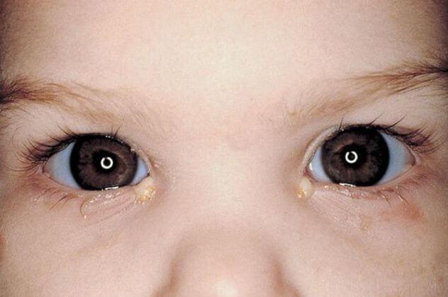 дакриоцистит у ребенка