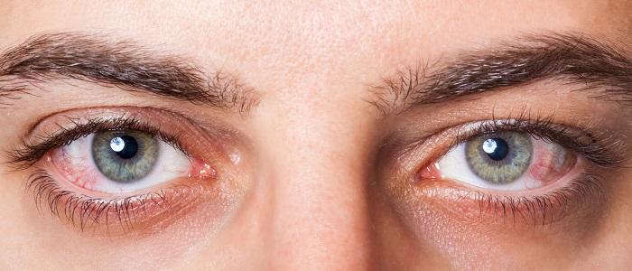 тромб в глазу лечение