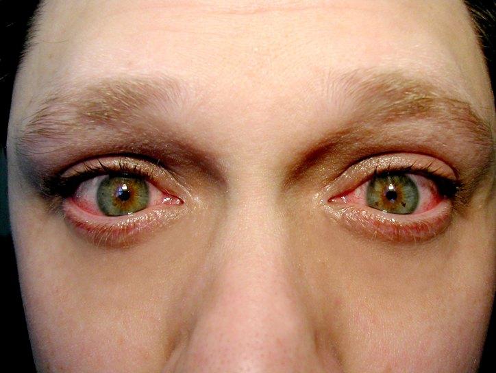 лечение блефарита