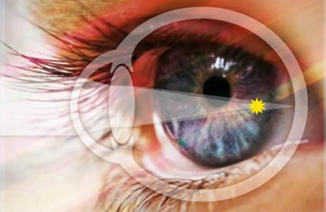 глаза при близорукости