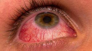 симптом кератита