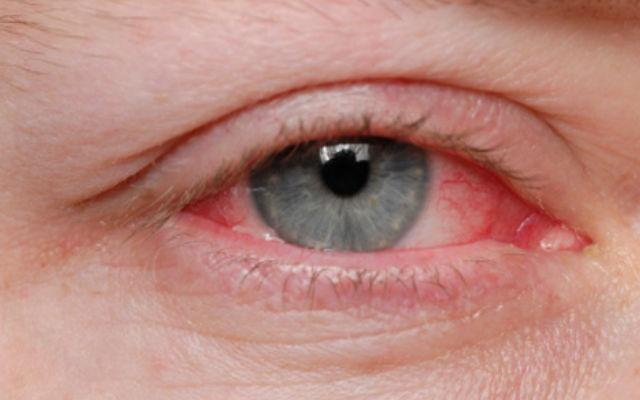 лечение красных глаз