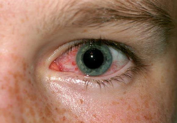 симптомы демодекоза