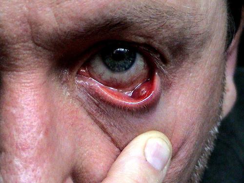 халязион в глазу