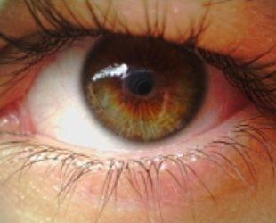 глаза при куриной слепоте