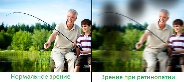 ретинопатия симптомы
