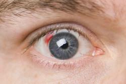 дистрофия глаза