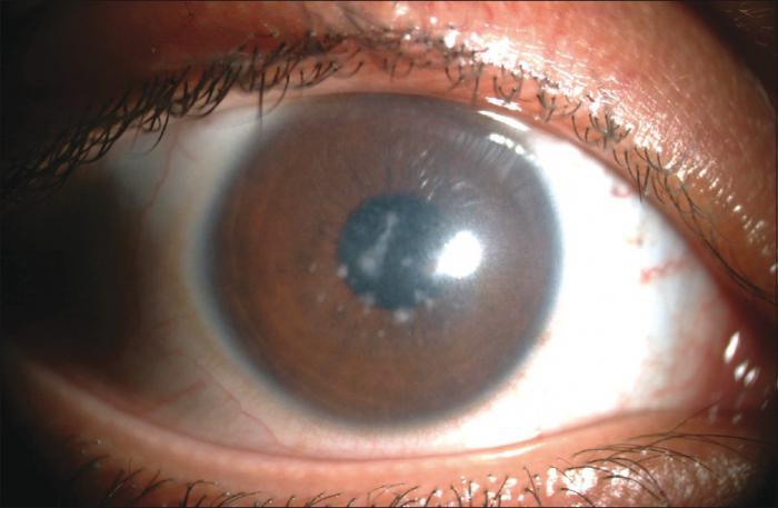 дистрофия глаз