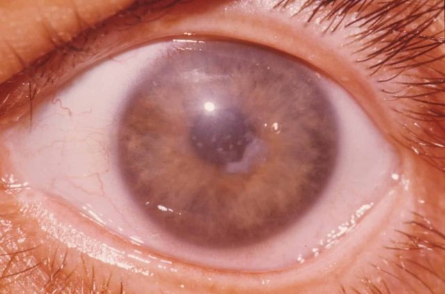 глазная дистрофия