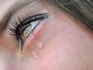 слезятся глаза причины и лечение