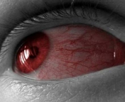 симптомы покраснений
