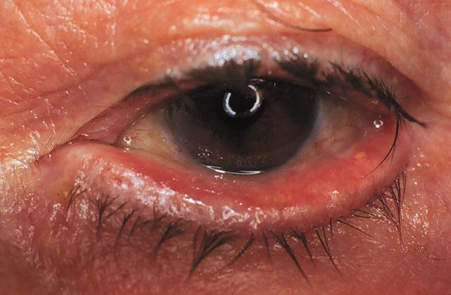 симптомы красного глаза