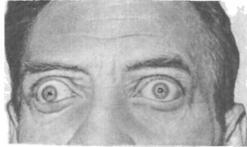 симптомы выпученных глаз