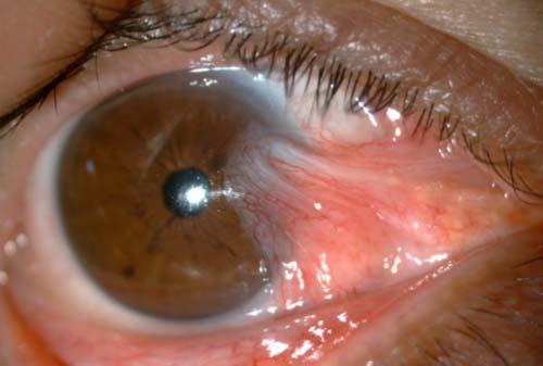 симптомы птеригиума глаза