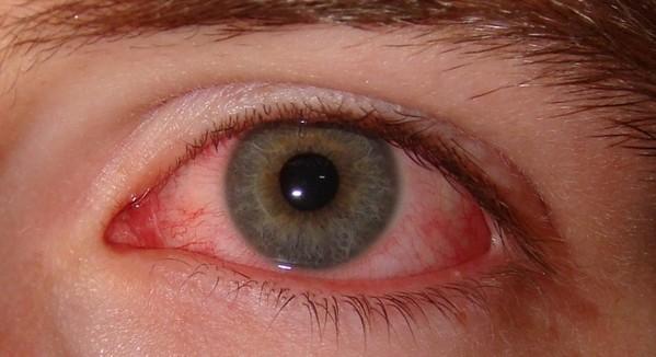 ожог глаза и лечение