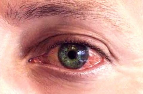 симптом герпеса на глазу