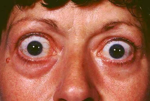лечение выпученных глаз