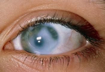 болезнь глаза глаукома