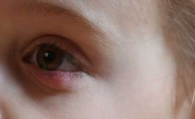 воспаление у детей