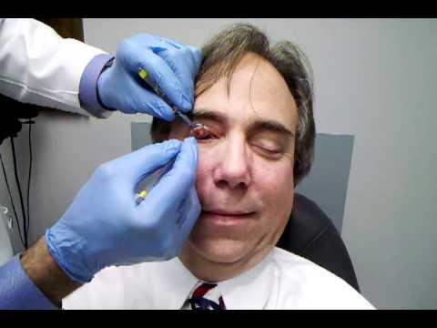 лечение халязиона