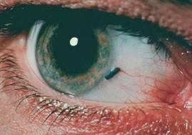 симптомы травмы глаза