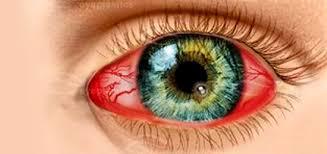 красный глаз от кератита