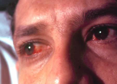 кератит и воспаление