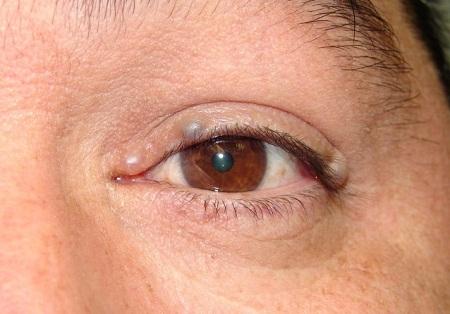 Можно ли удалить кисту с глаза? Причины появления образования