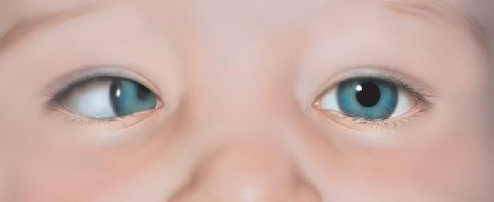 тип косых глаз