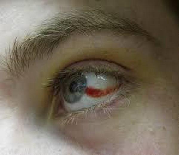 диагностика кровоизлияния