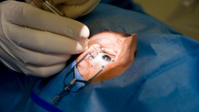 операция при дальнозоркости