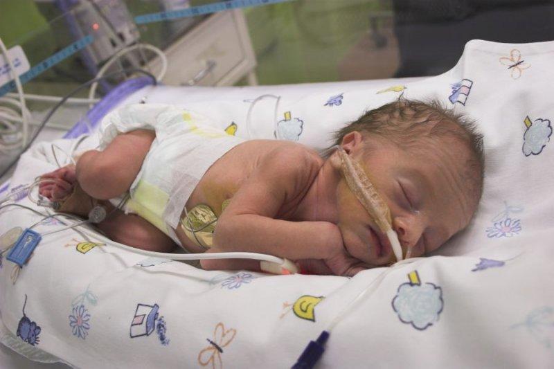 диагностика ретинопатии у новорожденных