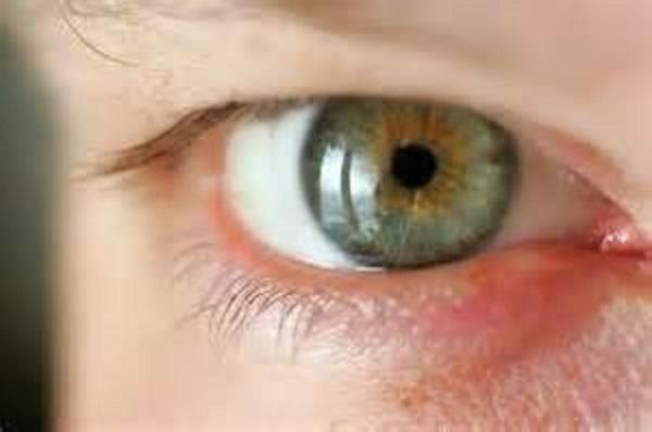 куриная слепота лечение