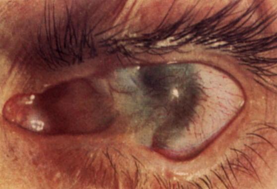 ожог глаза последствие