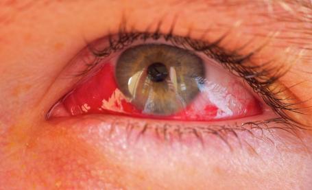 причины кровоизлияния в глаза