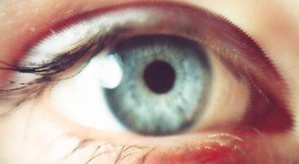 глаза при миопии