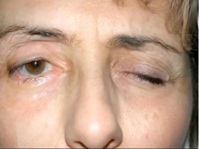 неврит глаза