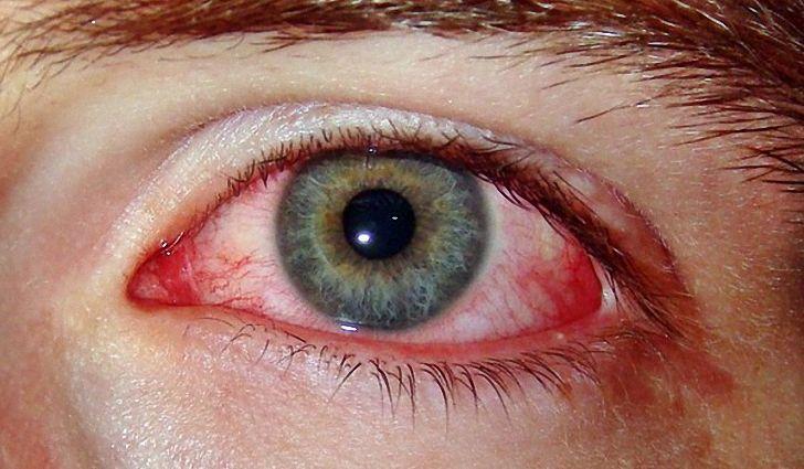 симптомы красных глаз