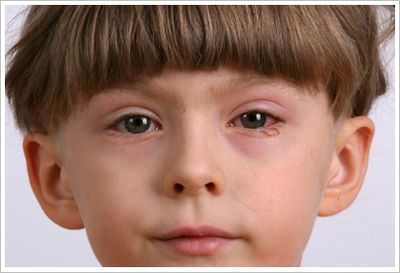 чешуйчатый блефарит ребенка