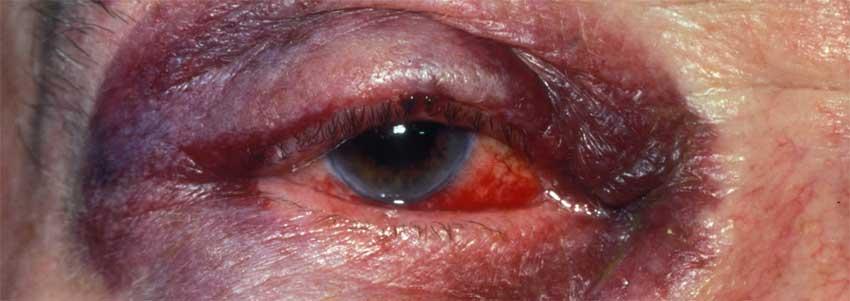 гематома при травме глаза